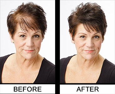 Regrow Your Hair Without Sexual Side Effects Surgery
