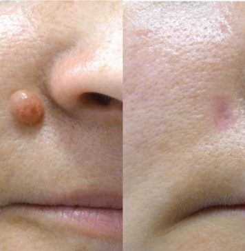 Skin Tag and Mole Removal - SkinCell Pro Reviews, Skin Tag and Mole Removal
